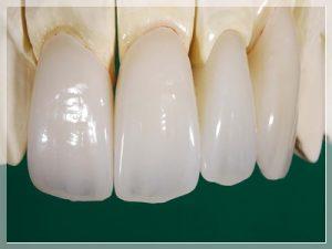 Zirkonyum diş ömrü ne kadar?
