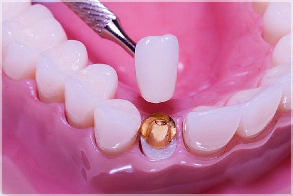Zirkonyum diş tedavisi nasıl yapılır