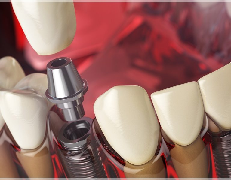 etiler implant