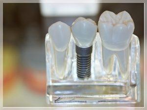 kadıköy implant tedavisi