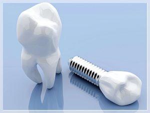 maltepe implant tedavisi