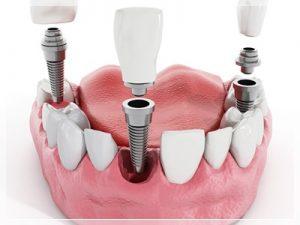 maltepe implant fiyatları