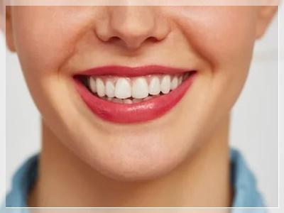 şişli gülüş tasarımı nasıl yapılır