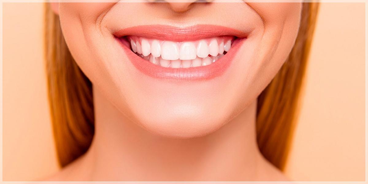 şişli gülüş tasarımı