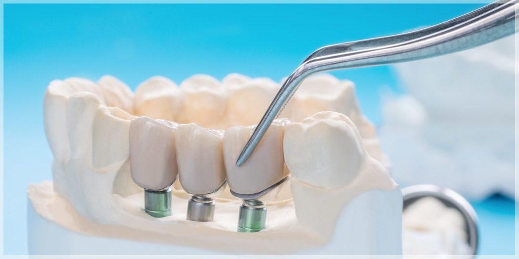 şişli implant
