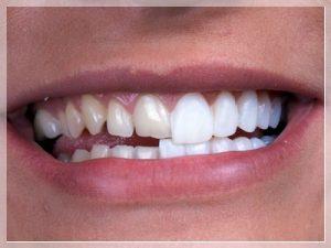 En iyi diş kaplama hangisi?
