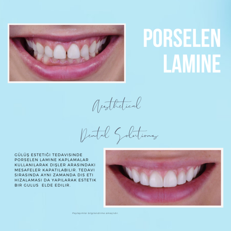 Porselen Lamine